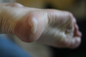 phlyctène au pied