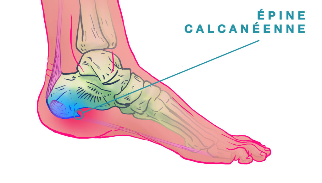 Schéma epine calcanéenne